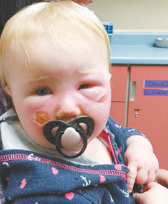 Infant with blistered face